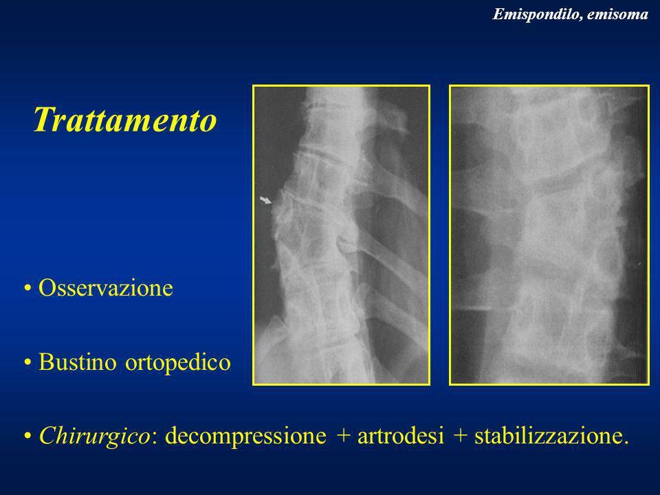 Trattamento Osservazione Bustino ortopedico Chirurgico: decompressione + artrodesi + stabilizzazione. Emispondilo, emisoma