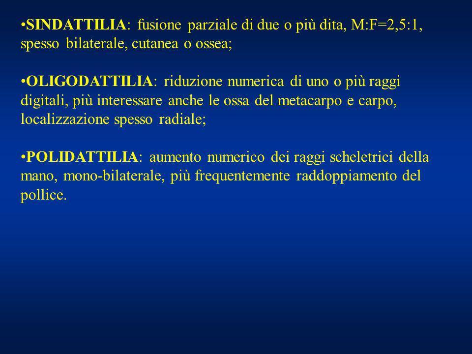 SINDATTILIA: fusione parziale di due o più dita, M:F=2,5:1, spesso bilaterale, cutanea o ossea; OLIGODATTILIA: riduzione numerica di uno o più raggi d