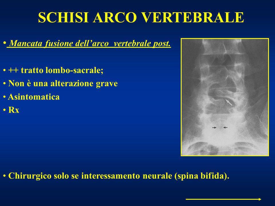 SCHISI ARCO VERTEBRALE Mancata fusione dellarco vertebrale post. ++ tratto lombo-sacrale; Non è una alterazione grave Asintomatica Rx Chirurgico solo