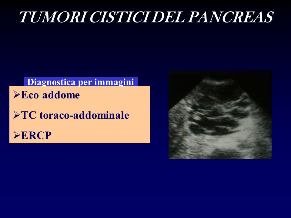 Eco addome TC toraco-addominale ERCP Diagnostica per immagini TUMORI CISTICI DEL PANCREAS
