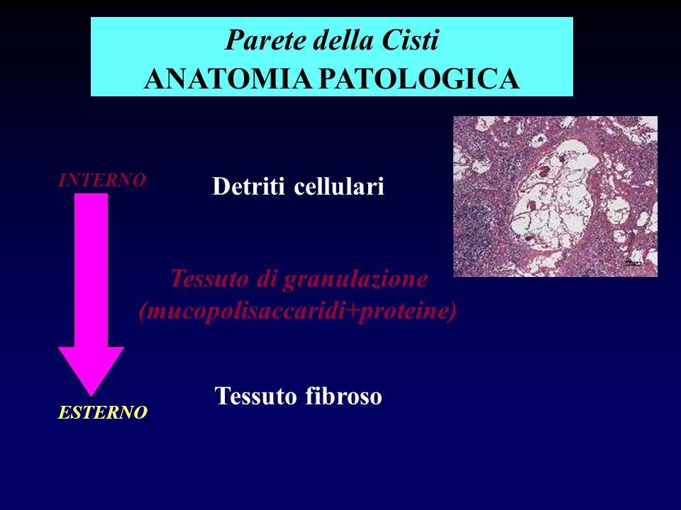 Detriti cellulari Tessuto di granulazione (mucopolisaccaridi+proteine) Tessuto fibroso Parete della Cisti ANATOMIA PATOLOGICA INTERNO ESTERNO