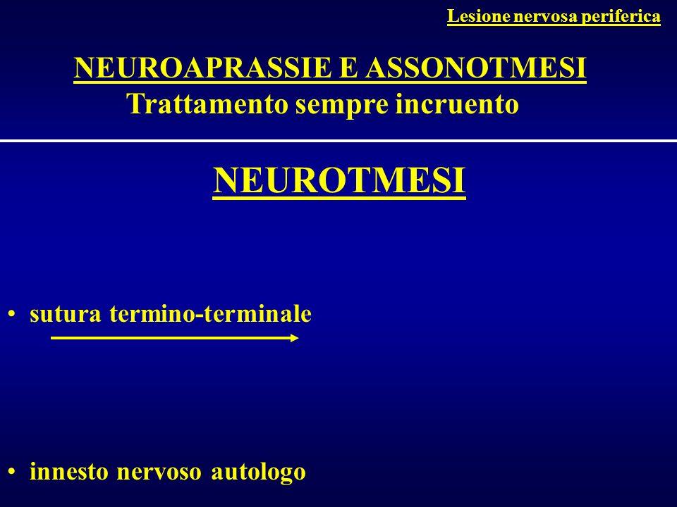 Clinica: segno di Tinel +++ EMG Diagnosi Sindrome del tunnel tarsale