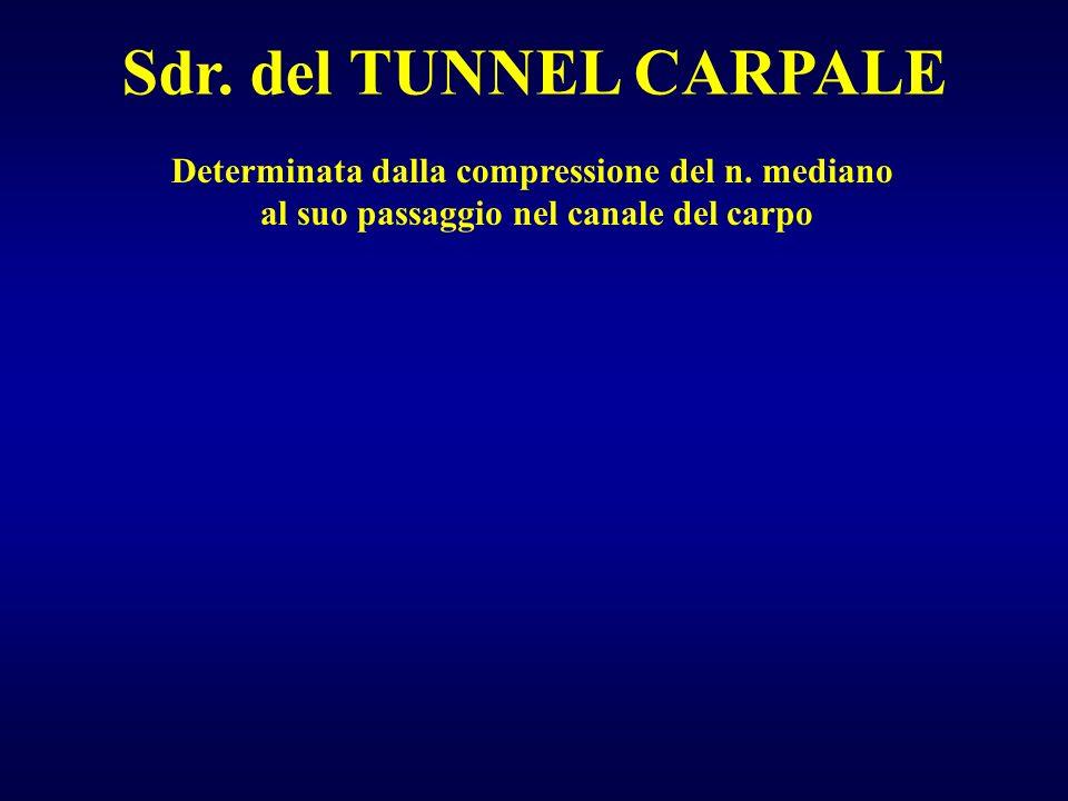 Sdr. del TUNNEL CARPALE Determinata dalla compressione del n. mediano al suo passaggio nel canale del carpo