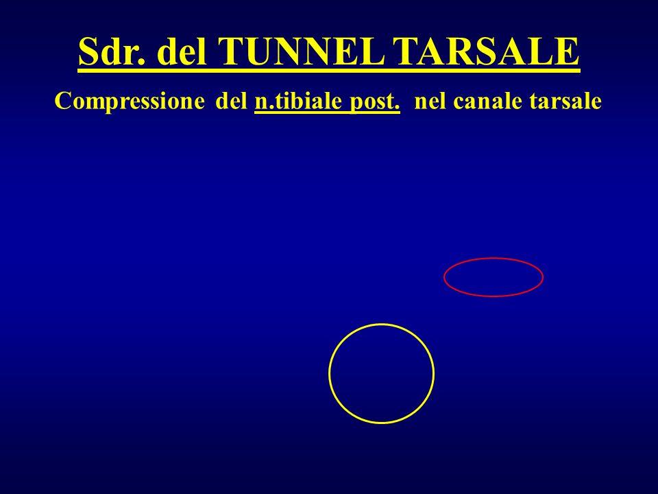 Sdr. del TUNNEL TARSALE Compressione del n.tibiale post. nel canale tarsale