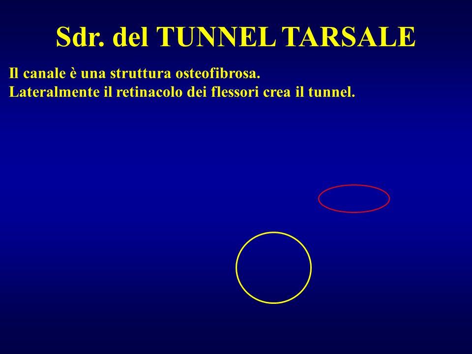 Sdr. del TUNNEL TARSALE Il canale è una struttura osteofibrosa. Lateralmente il retinacolo dei flessori crea il tunnel.