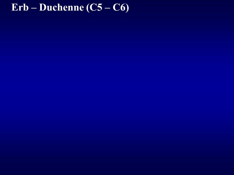 Erb – Duchenne (C5 – C6)