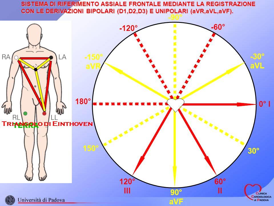 SISTEMA DI RIFERIMENTO ASSIALE FRONTALE MEDIANTE LA REGISTRAZIONE CON LE DERIVAZIONI BIPOLARI (D1,D2,D3) E UNIPOLARI (aVR,aVL,aVF). 0° I 60° II 120° I