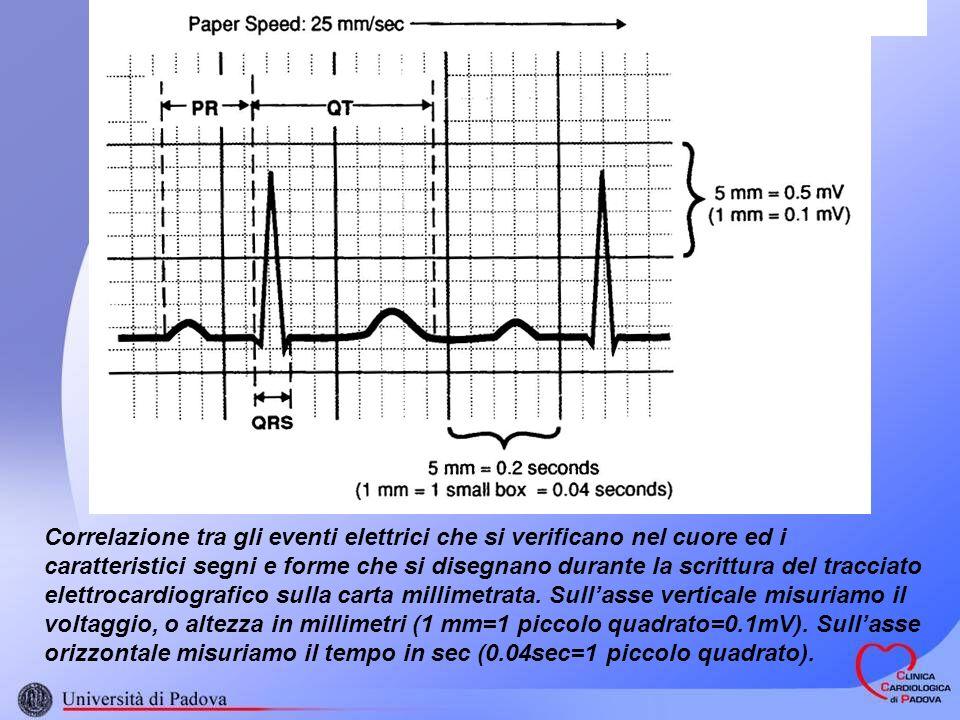 Correlazione tra gli eventi elettrici che si verificano nel cuore ed i caratteristici segni e forme che si disegnano durante la scrittura del tracciat