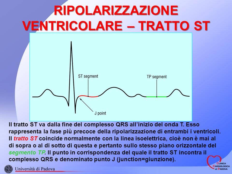RIPOLARIZZAZIONE VENTRICOLARE – TRATTO ST Il tratto ST va dalla fine del complesso QRS allinizio del onda T. Esso rappresenta la fase più precoce dell
