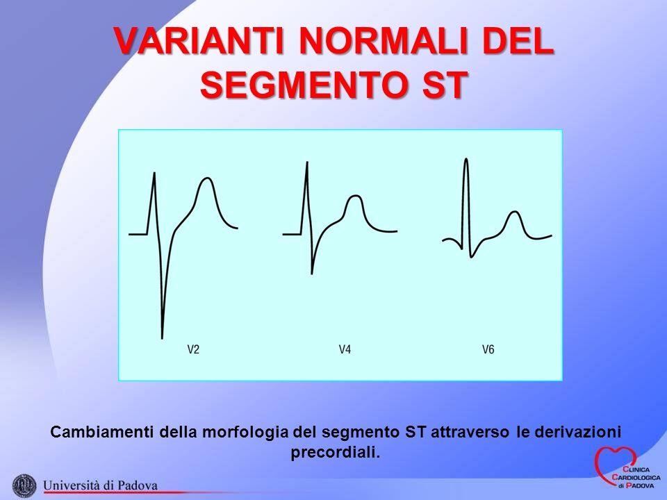 VARIANTI NORMALI DEL SEGMENTO ST Cambiamenti della morfologia del segmento ST attraverso le derivazioni precordiali.