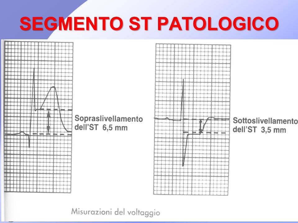 SEGMENTO ST PATOLOGICO