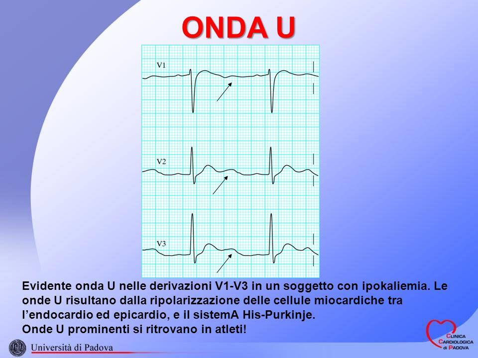 ONDA U Evidente onda U nelle derivazioni V1-V3 in un soggetto con ipokaliemia. Le onde U risultano dalla ripolarizzazione delle cellule miocardiche tr
