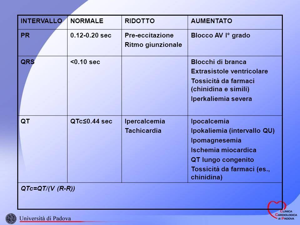 INTERVALLONORMALERIDOTTOAUMENTATO PR0.12-0.20 secPre-eccitazione Ritmo giunzionale Blocco AV I° grado QRS<0.10 secBlocchi di branca Extrasistole ventricolare Tossicità da farmaci (chinidina e simili) Iperkaliemia severa QTQTc0.44 secIpercalcemia Tachicardia Ipocalcemia Ipokaliemia (intervallo QU) Ipomagnesemia Ischemia miocardica QT lungo congenito Tossicità da farmaci (es., chinidina) QTc=QT/(V (R-R))