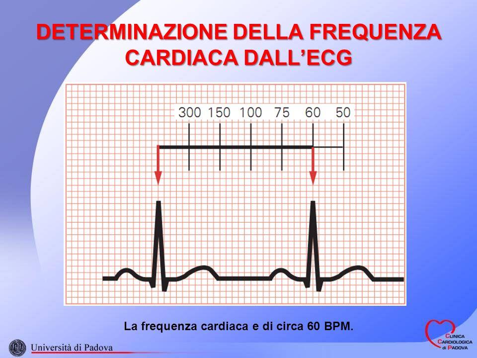 DETERMINAZIONE DELLA FREQUENZA CARDIACA DALLECG La frequenza cardiaca e di circa 60 BPM.