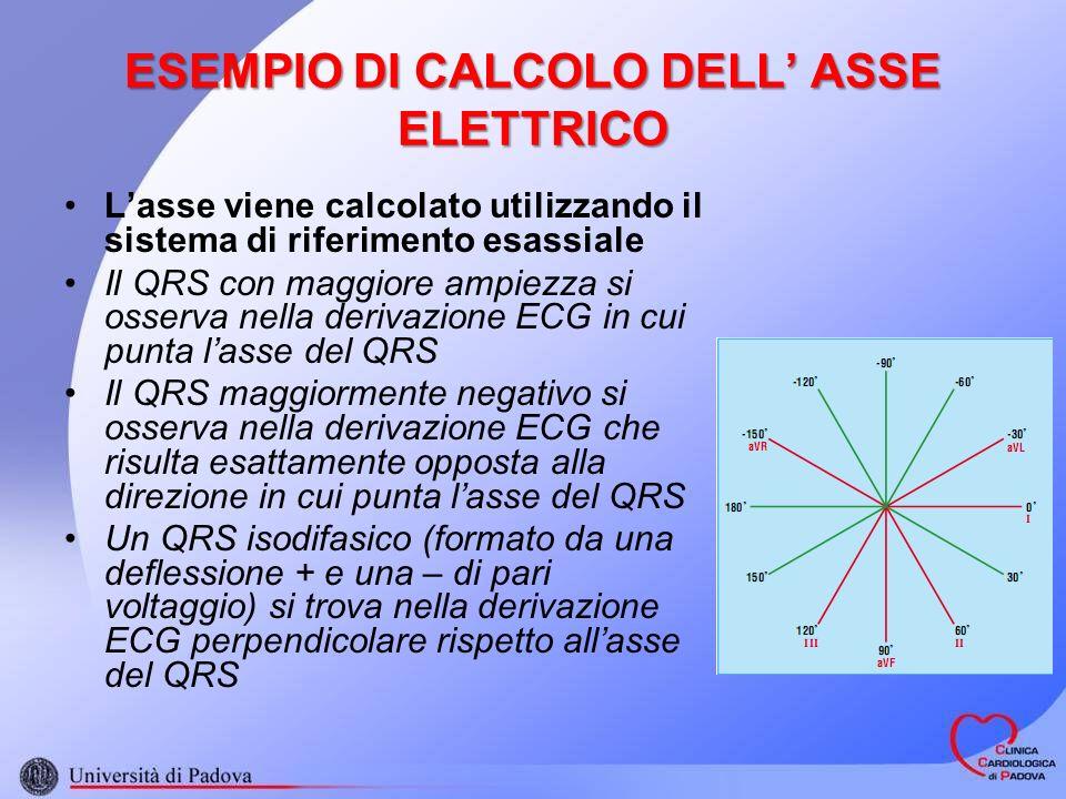 ESEMPIO DI CALCOLO DELL ASSE ELETTRICO Lasse viene calcolato utilizzando il sistema di riferimento esassiale Il QRS con maggiore ampiezza si osserva nella derivazione ECG in cui punta lasse del QRS Il QRS maggiormente negativo si osserva nella derivazione ECG che risulta esattamente opposta alla direzione in cui punta lasse del QRS Un QRS isodifasico (formato da una deflessione + e una – di pari voltaggio) si trova nella derivazione ECG perpendicolare rispetto allasse del QRS