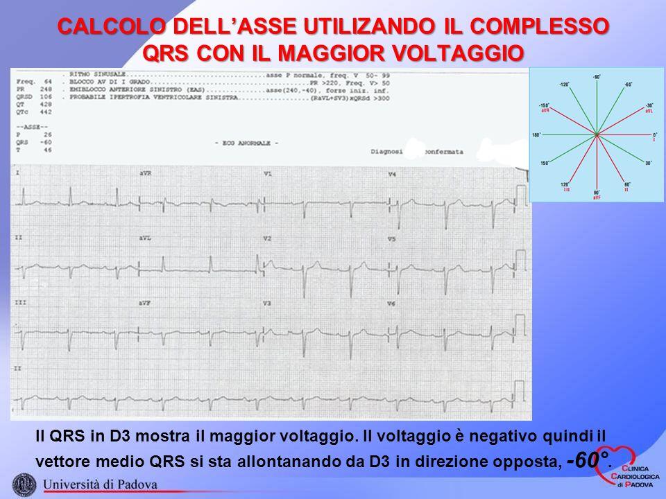 CALCOLO DELLASSE UTILIZANDO IL COMPLESSO QRS CON IL MAGGIOR VOLTAGGIO Il QRS in D3 mostra il maggior voltaggio. Il voltaggio è negativo quindi il vett