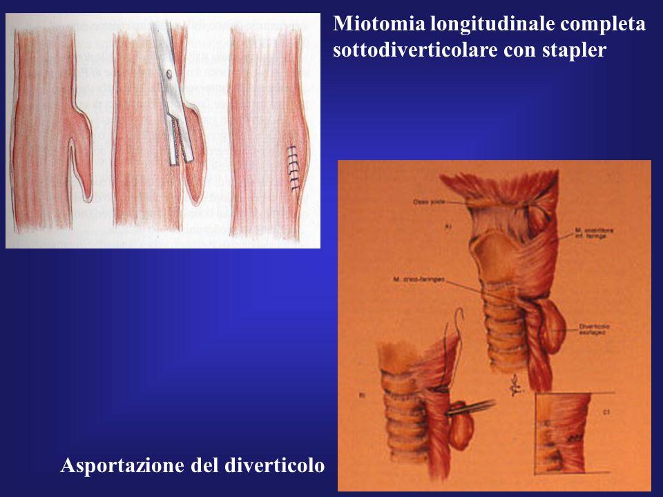 Miotomia longitudinale completa sottodiverticolare con stapler Asportazione del diverticolo