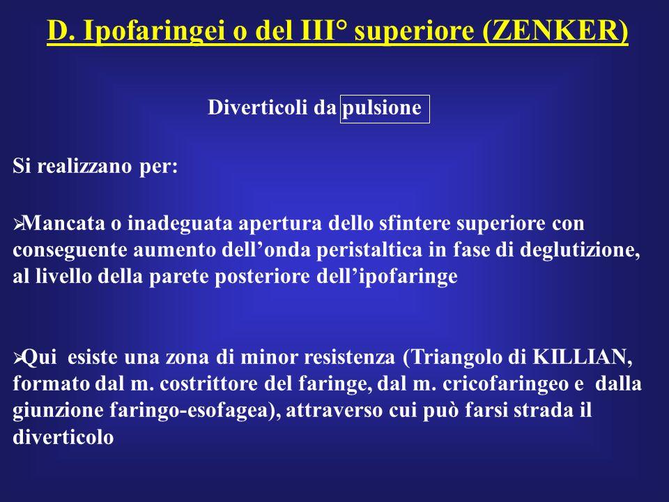 D. Ipofaringei o del III° superiore (ZENKER) Diverticoli da pulsione Si realizzano per: Mancata o inadeguata apertura dello sfintere superiore con con