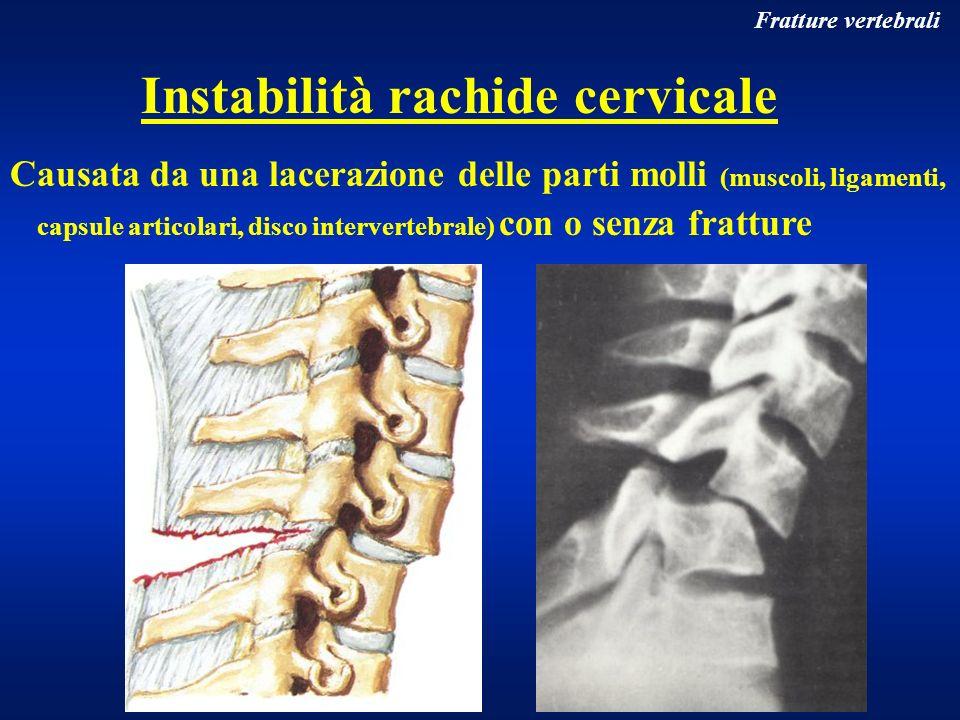 Fratture vertebrali Causata da una lacerazione delle parti molli (muscoli, ligamenti, capsule articolari, disco intervertebrale) con o senza fratture