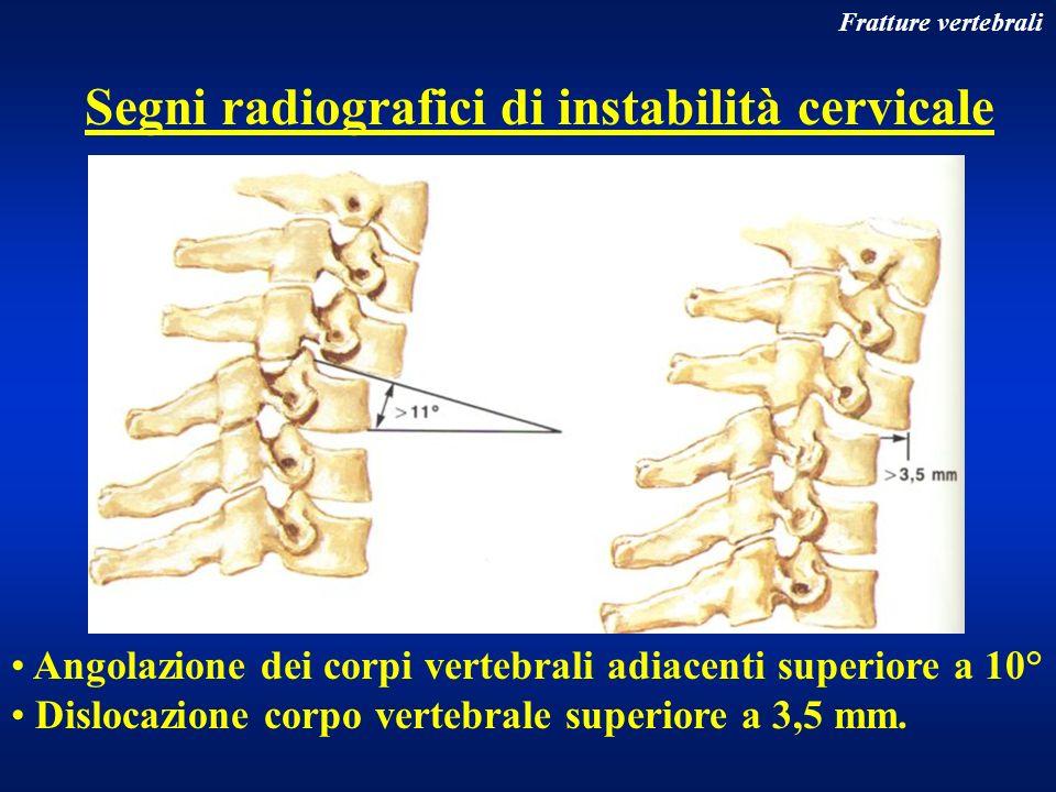 Fratture vertebrali Segni radiografici di instabilità cervicale Angolazione dei corpi vertebrali adiacenti superiore a 10° Dislocazione corpo vertebra