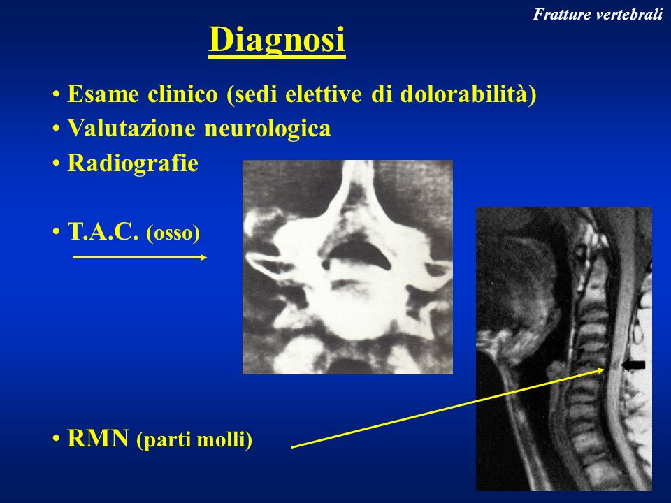 Fratture vertebrali Esame clinico (sedi elettive di dolorabilità) Valutazione neurologica Radiografie T.A.C. (osso) RMN (parti molli) Diagnosi