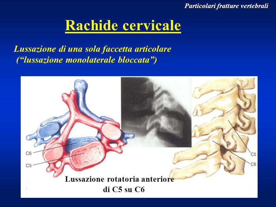 Particolari fratture vertebrali Rachide cervicale Lussazione di una sola faccetta articolare (lussazione monolaterale bloccata) Lussazione rotatoria a