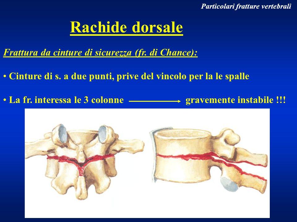 Particolari fratture vertebrali Rachide dorsale Frattura da cinture di sicurezza (fr. di Chance): Cinture di s. a due punti, prive del vincolo per la