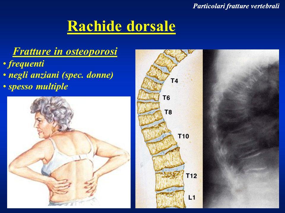 Particolari fratture vertebrali Rachide dorsale Fratture in osteoporosi frequenti negli anziani (spec. donne) spesso multiple