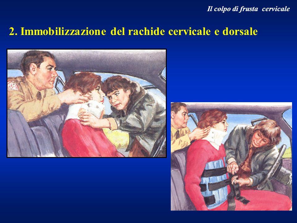 2. Immobilizzazione del rachide cervicale e dorsale Il colpo di frusta cervicale