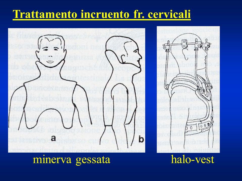 minerva gessata halo-vest Trattamento incruento fr. cervicali