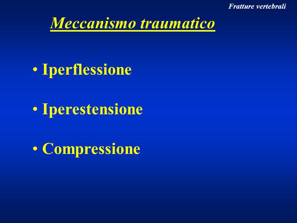 Fratture vertebrali Meccanismo traumatico Iperflessione Iperestensione Compressione