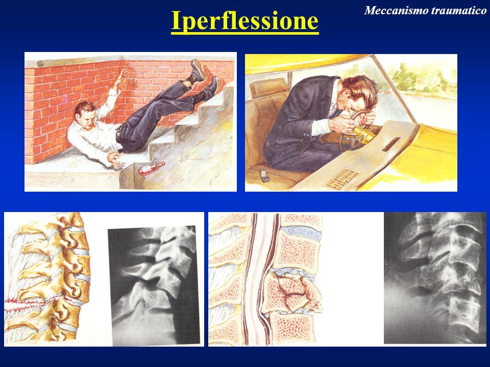 Particolari fratture vertebrali Rachide cervicale Lussazione di una sola faccetta articolare (lussazione monolaterale bloccata) Lussazione rotatoria anteriore di C5 su C6
