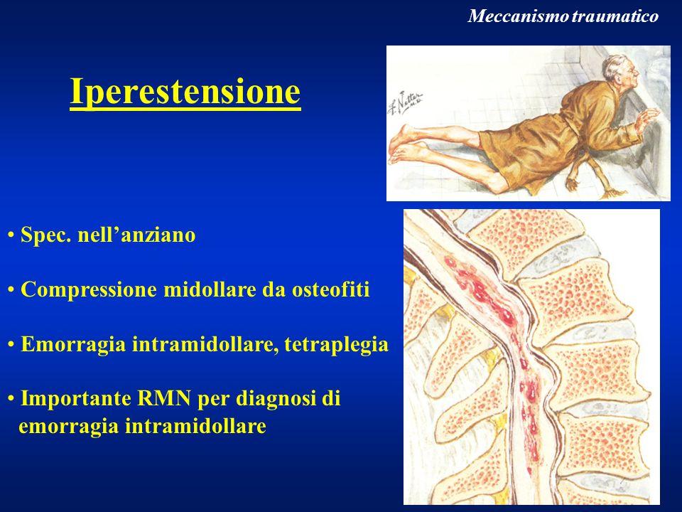 Meccanismo traumatico Iperestensione Spec. nellanziano Compressione midollare da osteofiti Emorragia intramidollare, tetraplegia Importante RMN per di