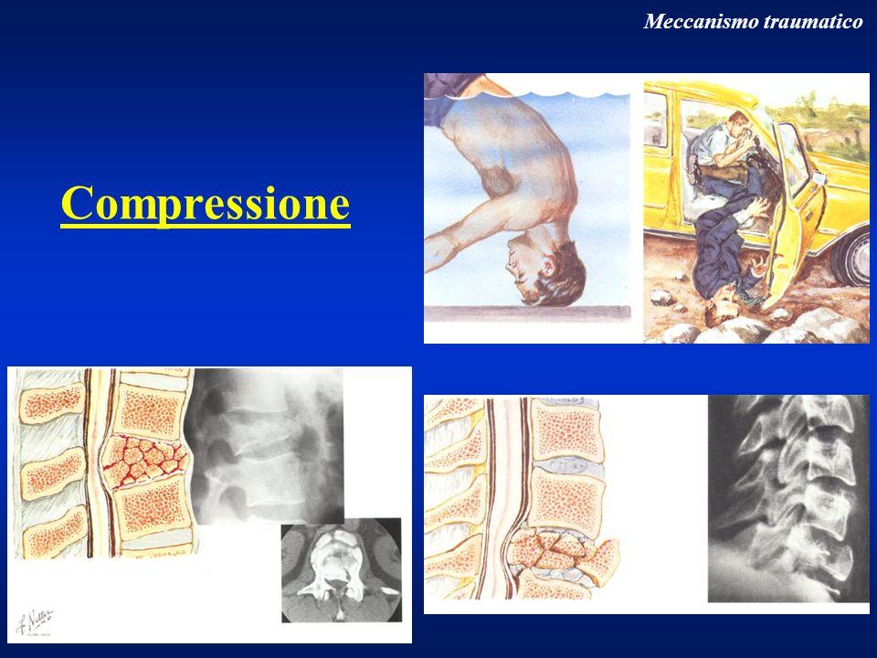 Particolari fratture vertebrali Rachide dorsale Fratture in osteoporosi frequenti negli anziani (spec.