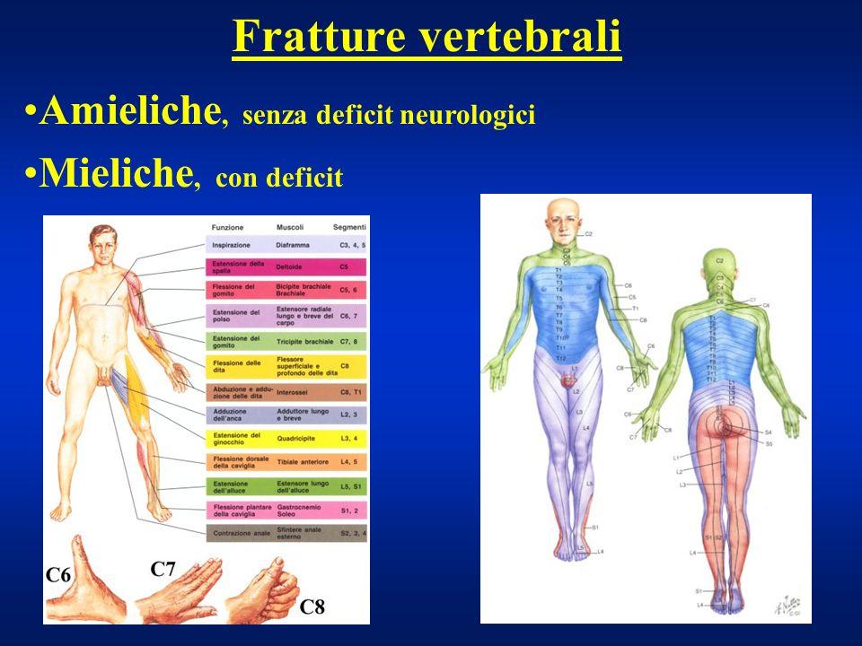 Fratture vertebrali Lesioni mieliche Causate da: Frattura muro posteriore (fr.