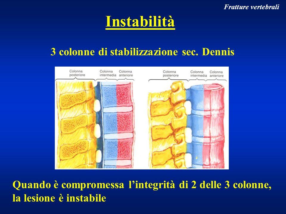 Fratture vertebrali Causata da una lacerazione delle parti molli (muscoli, ligamenti, capsule articolari, disco intervertebrale) con o senza fratture Instabilità rachide cervicale