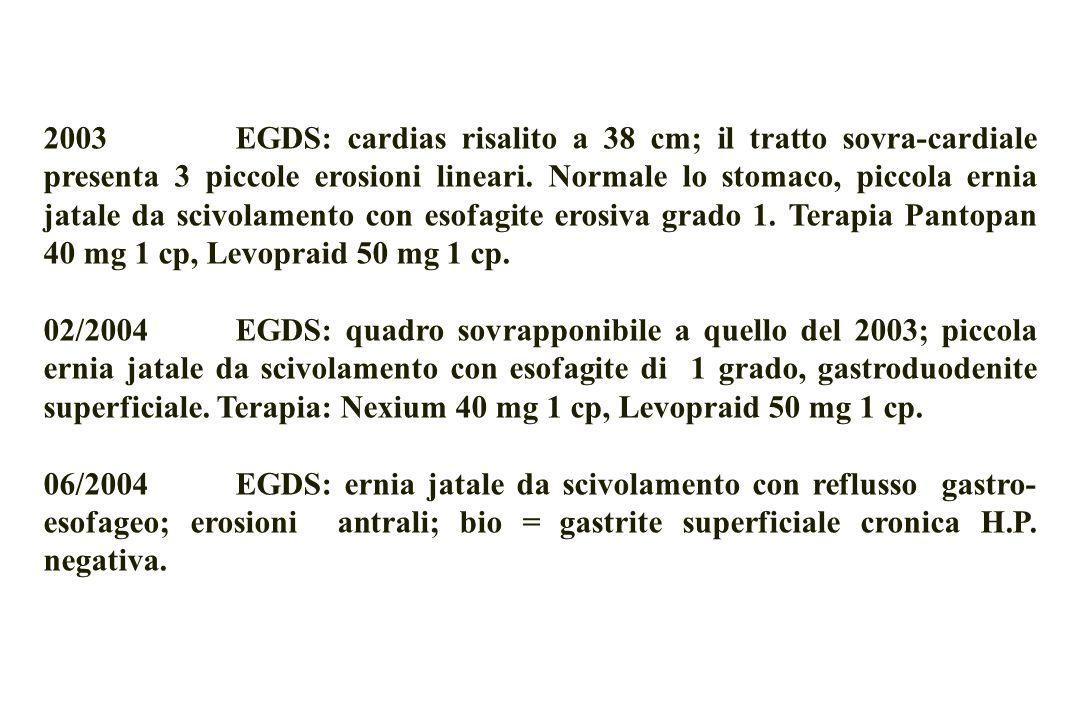 09/2004 EGDS esofagite di 2 grado che si estende fino a 41 cm dal cardias; cardias incontinente, gastrite iperemica diffusa, 3 ulcere duodenali.