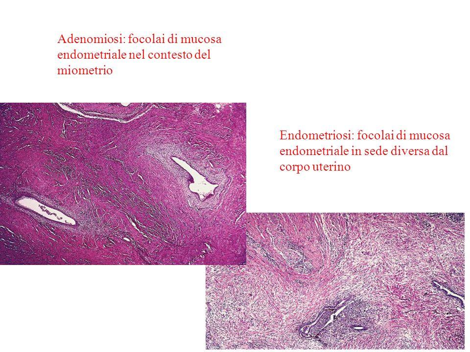 2008 Ciclo Endometriale25 Adenomiosi: focolai di mucosa endometriale nel contesto del miometrio Endometriosi: focolai di mucosa endometriale in sede d