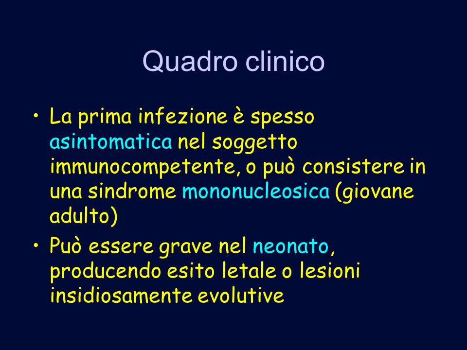 Quadro clinico La prima infezione è spesso asintomatica nel soggetto immunocompetente, o può consistere in una sindrome mononucleosica (giovane adulto) Può essere grave nel neonato, producendo esito letale o lesioni insidiosamente evolutive