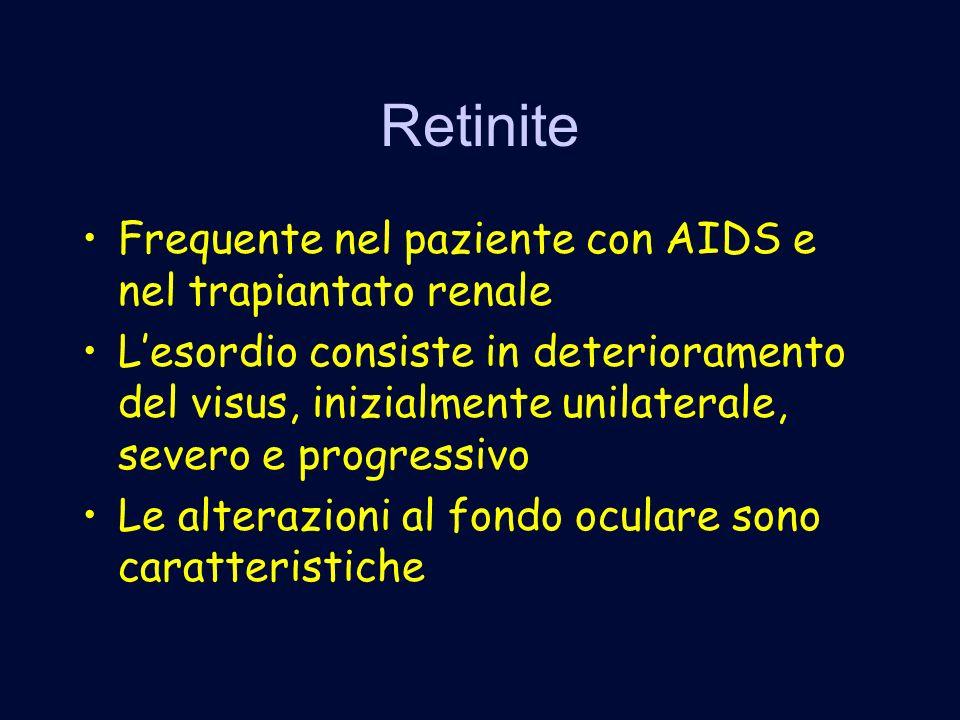 Retinite Frequente nel paziente con AIDS e nel trapiantato renale Lesordio consiste in deterioramento del visus, inizialmente unilaterale, severo e progressivo Le alterazioni al fondo oculare sono caratteristiche