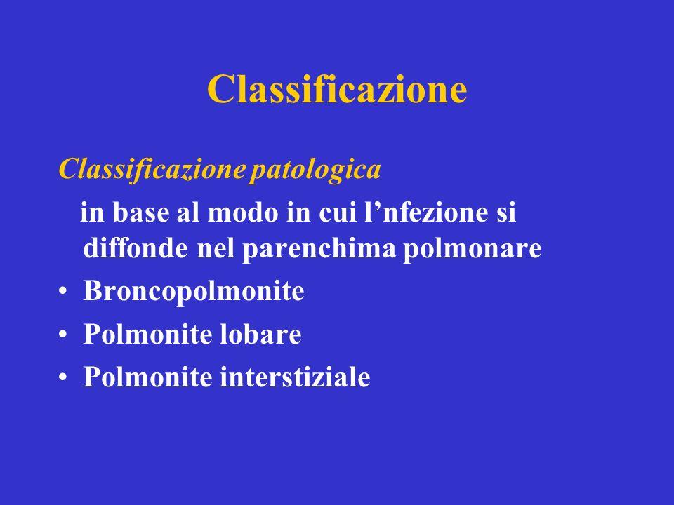 Classificazione Classificazione patologica in base al modo in cui lnfezione si diffonde nel parenchima polmonare Broncopolmonite Polmonite lobare Polmonite interstiziale