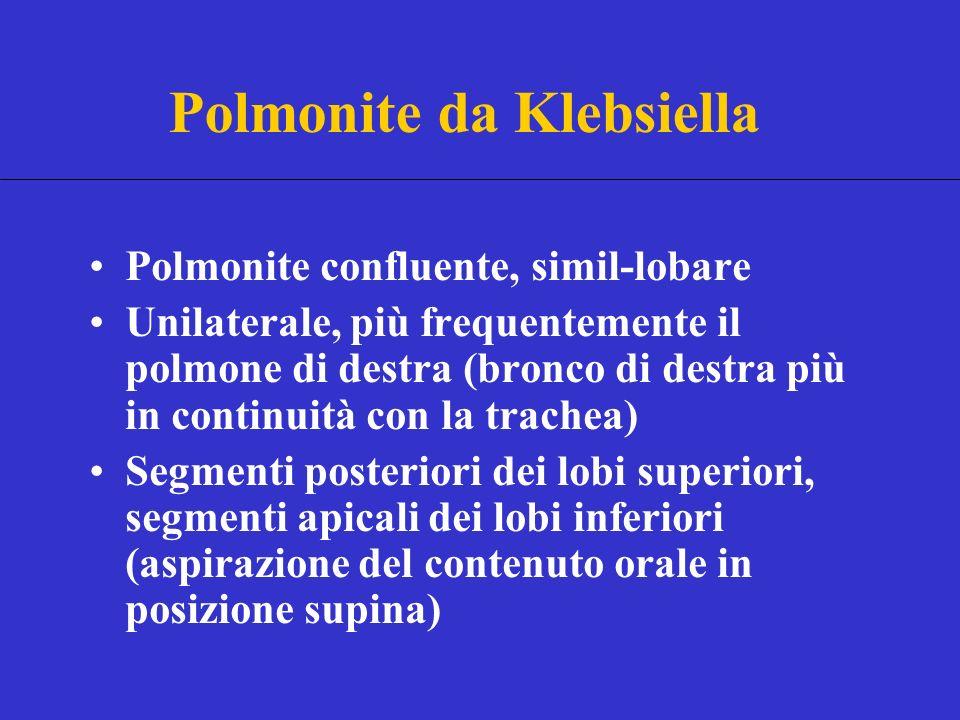 Polmonite confluente, simil-lobare Unilaterale, più frequentemente il polmone di destra (bronco di destra più in continuità con la trachea) Segmenti posteriori dei lobi superiori, segmenti apicali dei lobi inferiori (aspirazione del contenuto orale in posizione supina) Polmonite da Klebsiella