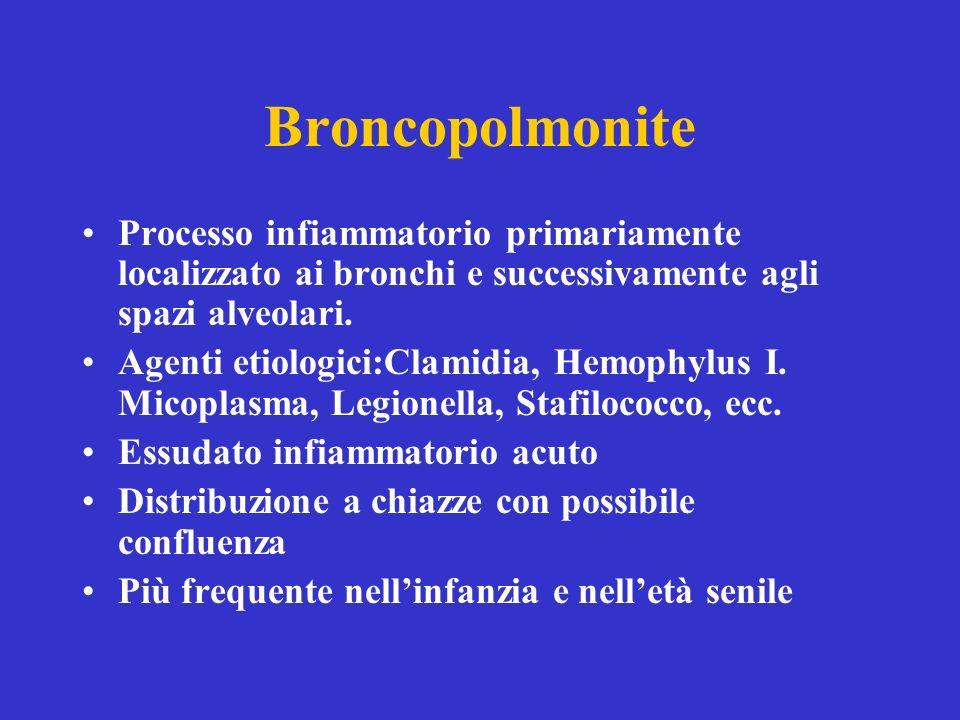 Broncopolmonite Processo infiammatorio primariamente localizzato ai bronchi e successivamente agli spazi alveolari. Agenti etiologici:Clamidia, Hemoph