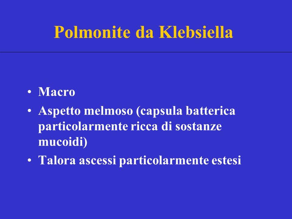 Macro Aspetto melmoso (capsula batterica particolarmente ricca di sostanze mucoidi) Talora ascessi particolarmente estesi Polmonite da Klebsiella