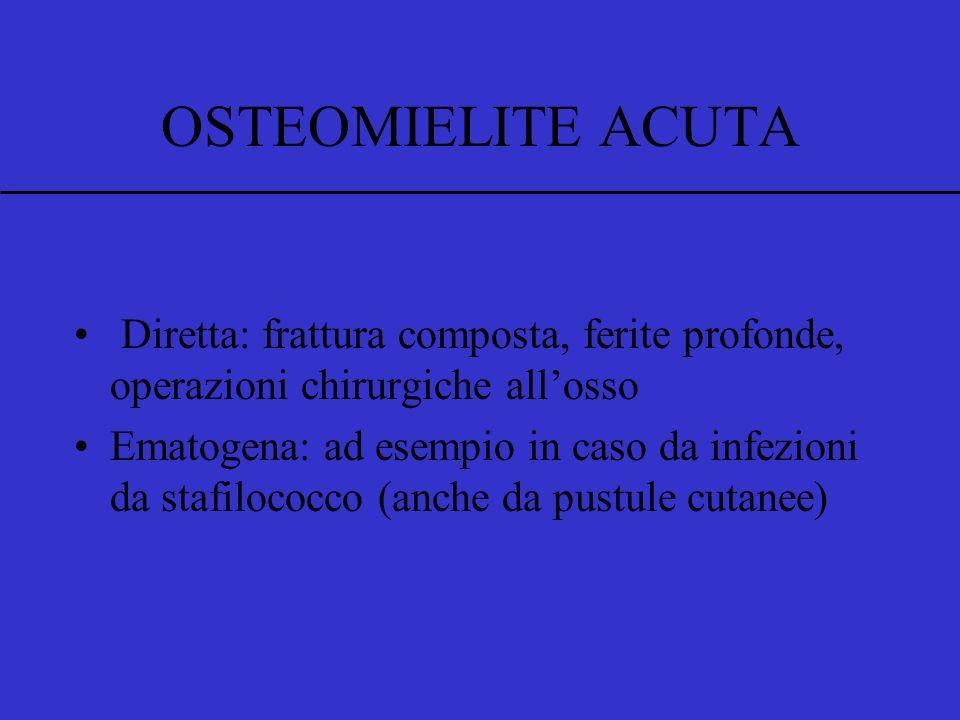 OSTEOMIELITE ACUTA Infezione dellosso Diretta: frattura composta, ferite profonde, operazioni chirurgiche allosso Ematogena: ad esempio in caso da inf