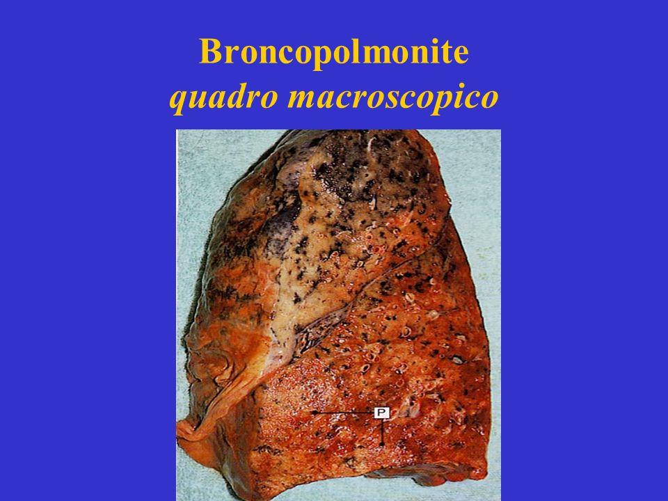 Broncopolmonite quadro macroscopico