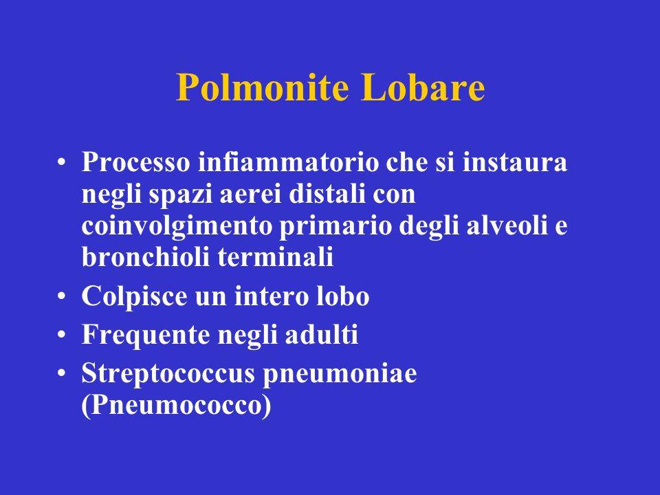 Polmonite Lobare Processo infiammatorio che si instaura negli spazi aerei distali con coinvolgimento primario degli alveoli e bronchioli terminali Colpisce un intero lobo Frequente negli adulti Streptococcus pneumoniae (Pneumococco)