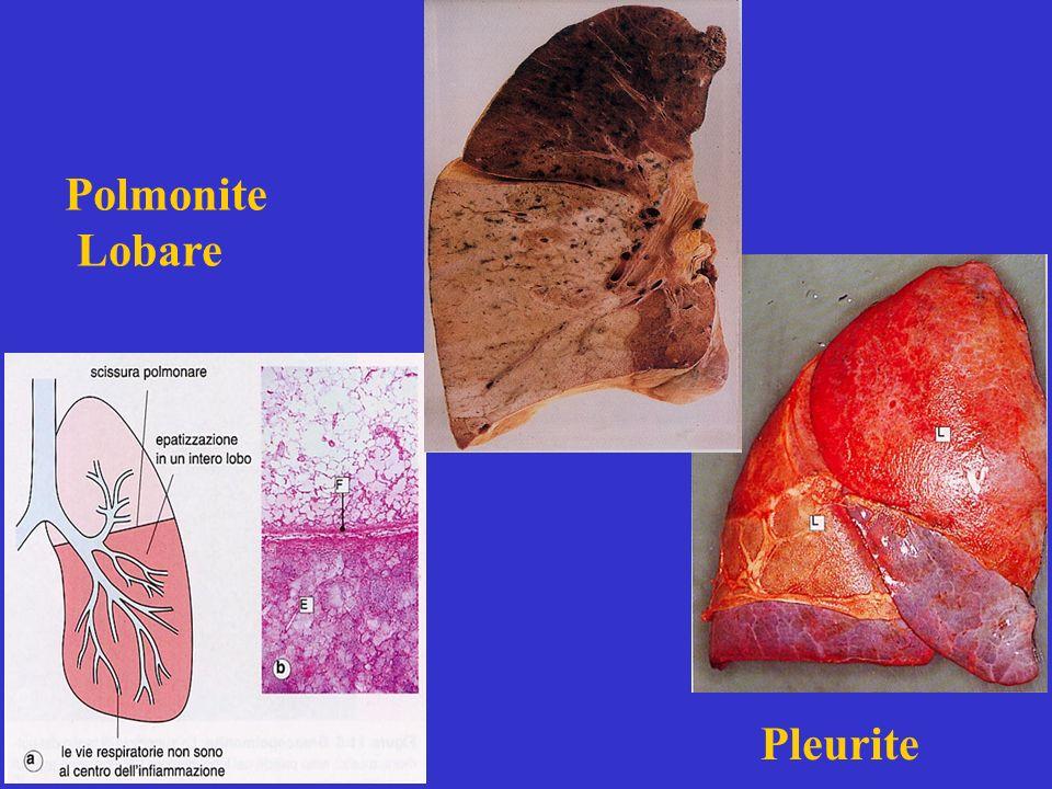 Polmonite Lobare Pleurite