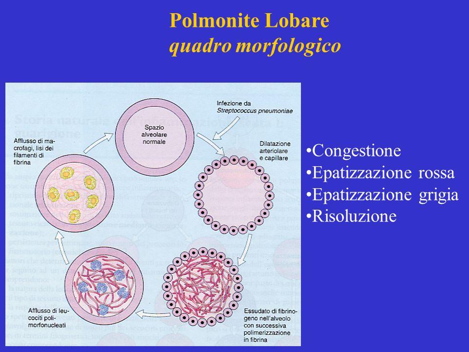 Polmonite Lobare quadro morfologico Congestione Epatizzazione rossa Epatizzazione grigia Risoluzione