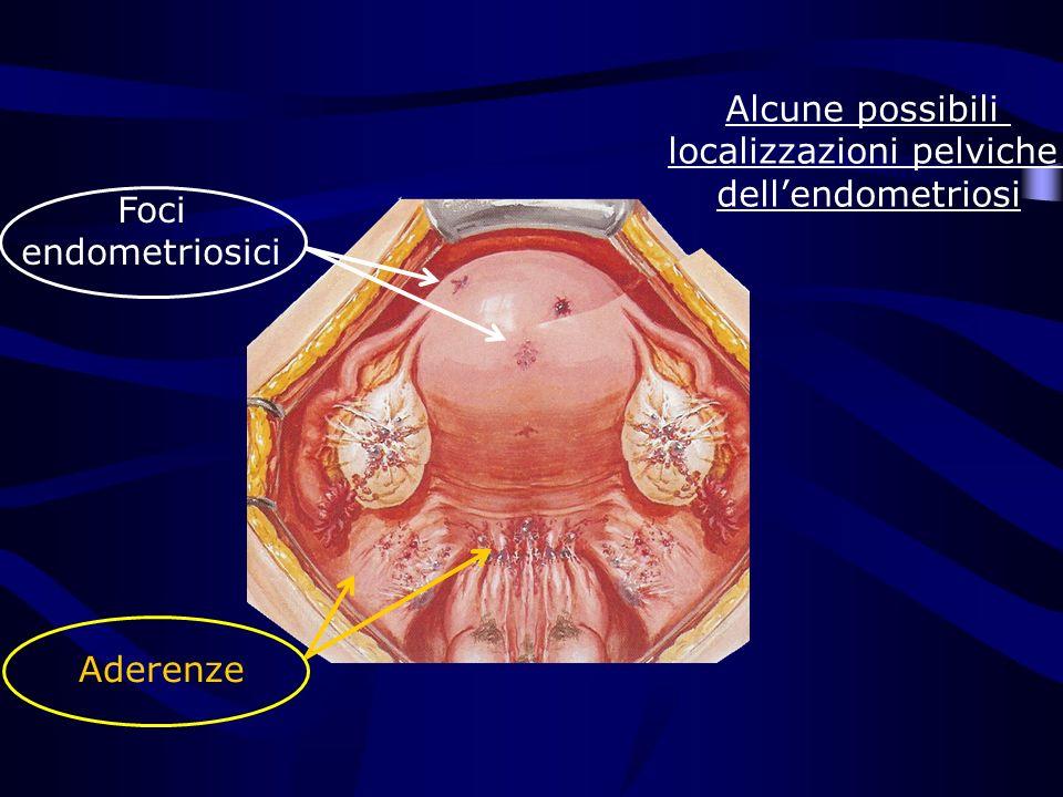 Foci endometriosici Aderenze Alcune possibili localizzazioni pelviche dellendometriosi